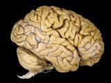 human-brain_1001_160x120
